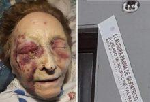 Photo of Denuncian golpes y malos tratos a abuela en un geriátrico de Gálvez