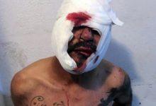 Photo of Estaba abusando de un nene y los vecinos lo lincharon
