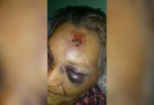 Photo of Salvaje golpiza a una abuela en Villa Ocampo