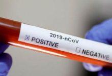 Photo of Se registraron seis muertes en un solo día de pacientes con COVID-19